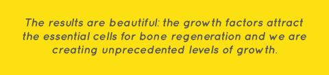 bone-growth