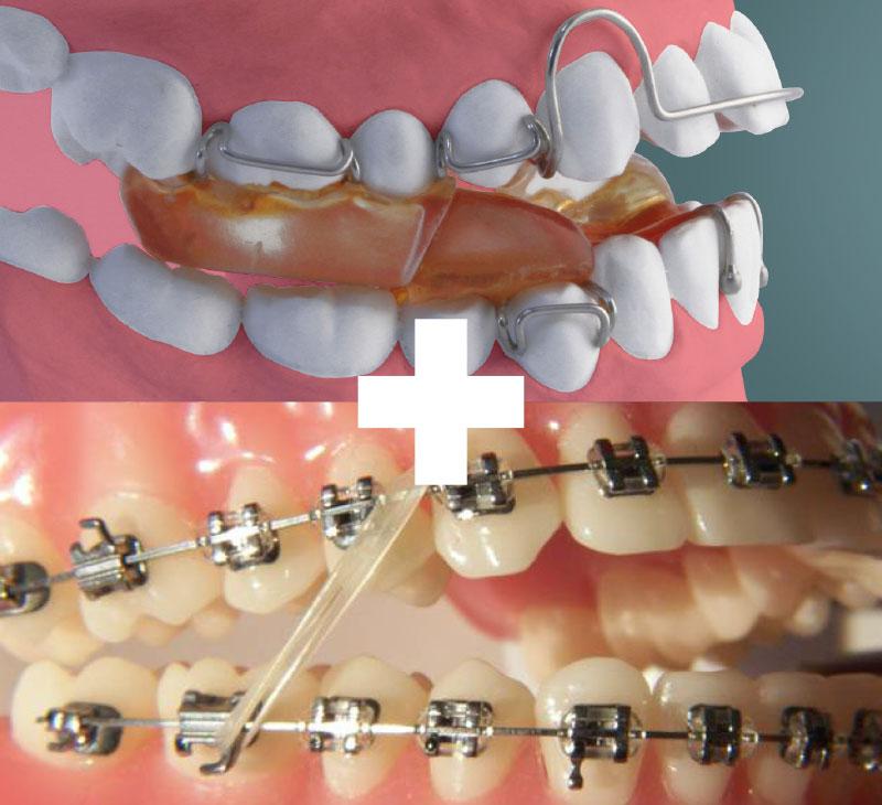 Functional then braces