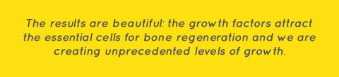 bone-growth