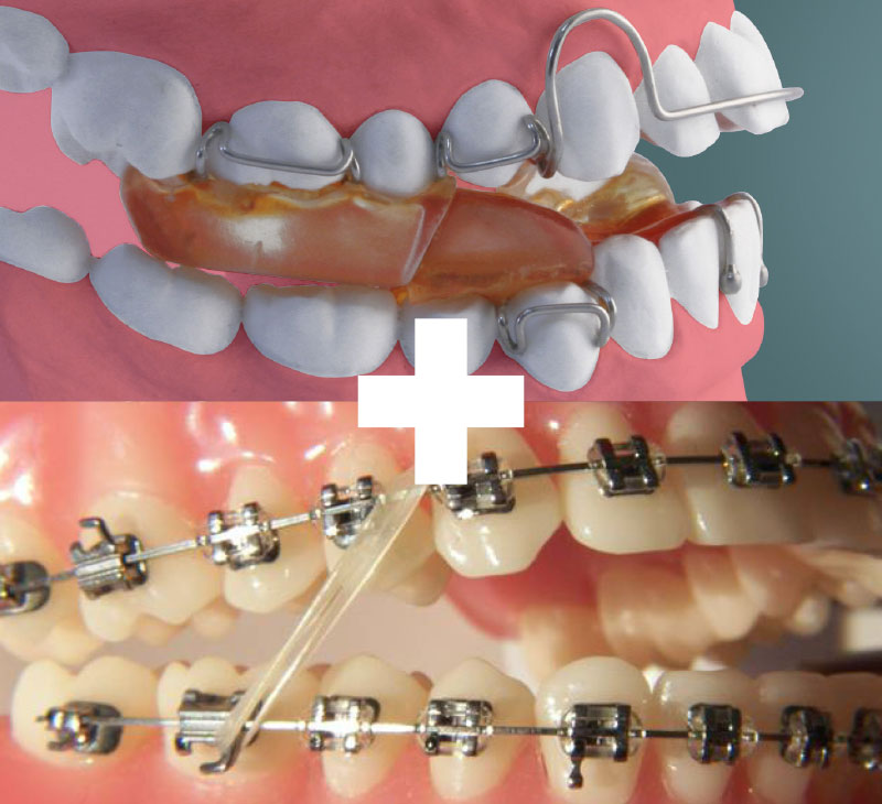 Functional then braces