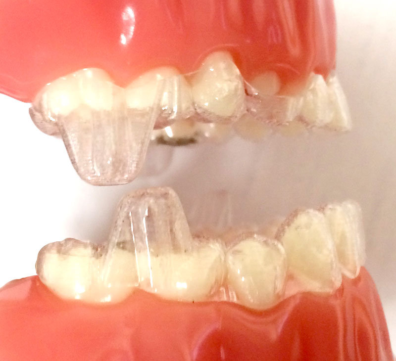 Invisalign Teen for complex cases