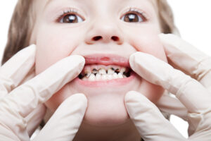 Children's Removable Braces