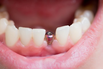 How Permanent Are Dental Implants?