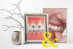 Insignia advanced smile deisgn and clear aligners, combination treatment