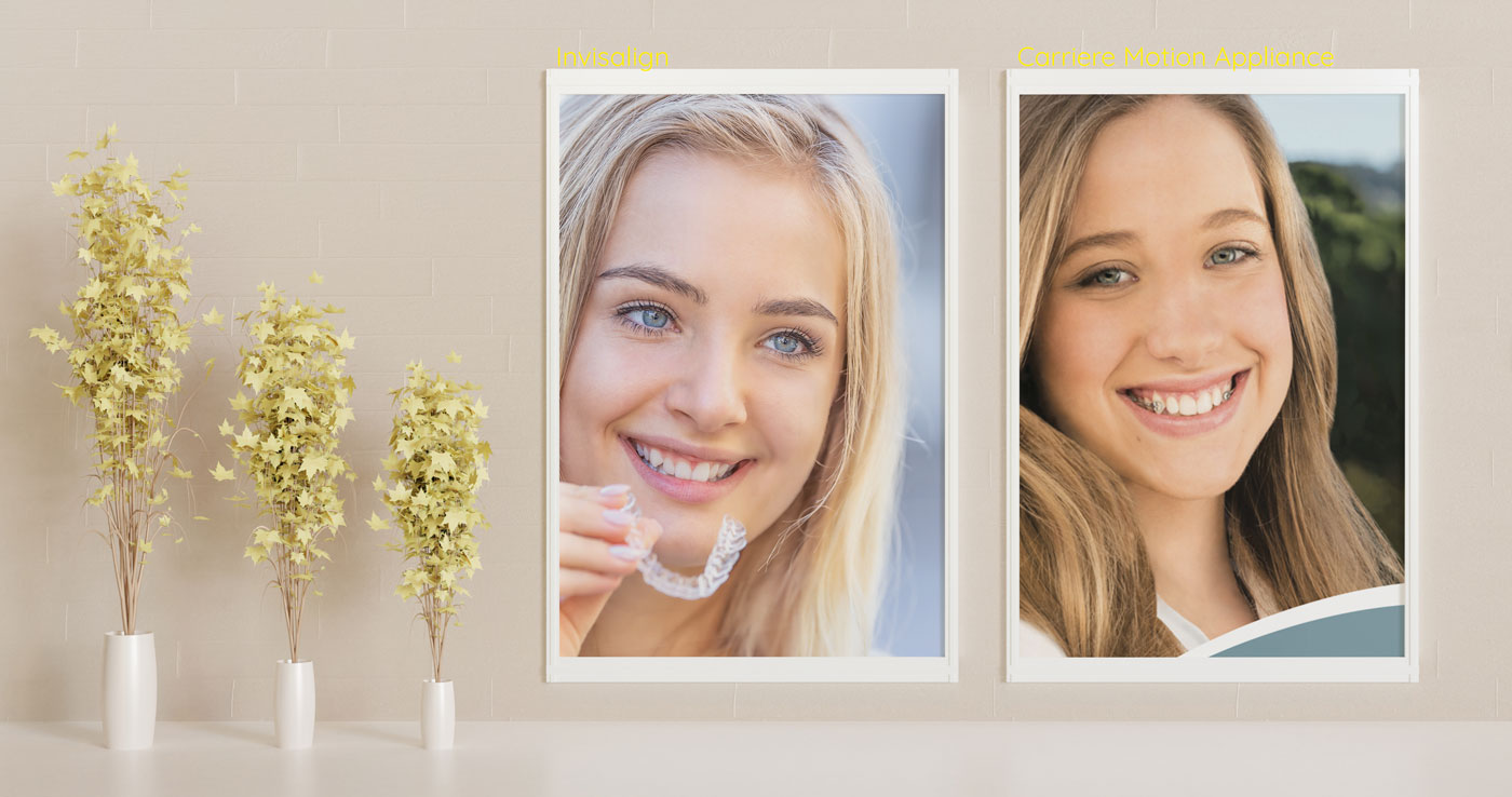 Invisalign and Carriere motion appliance combination teeth straightening treatment for adults