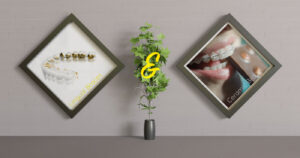 Lingual and ceramic braces combination treatment