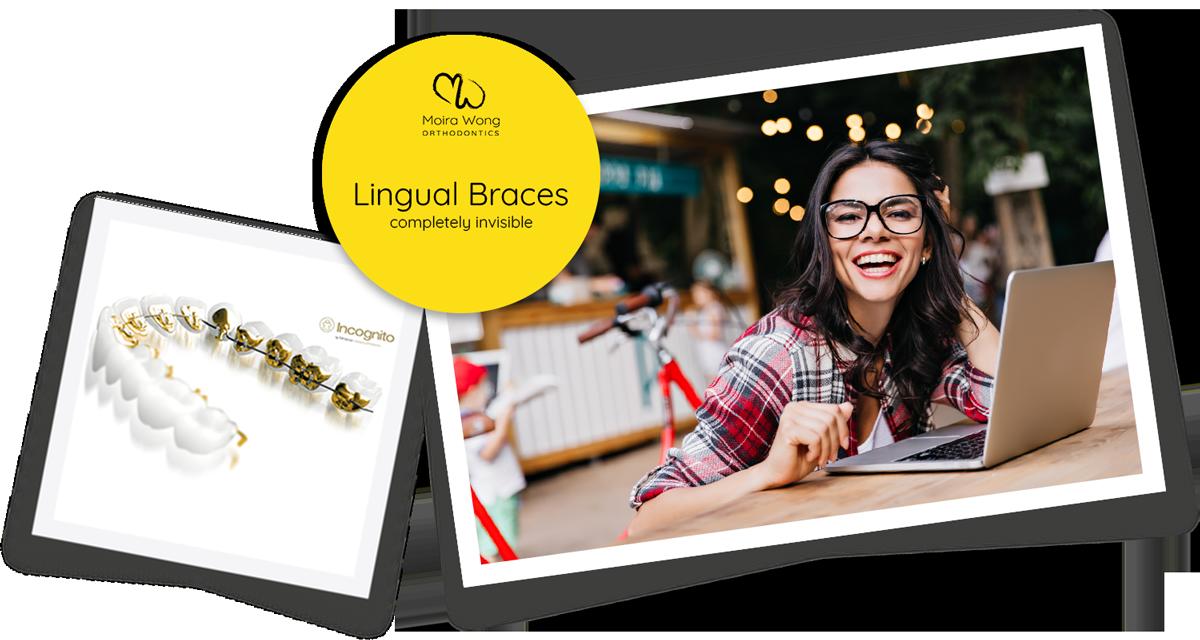 Lingual braces adults specialist orthodontist Kensington London