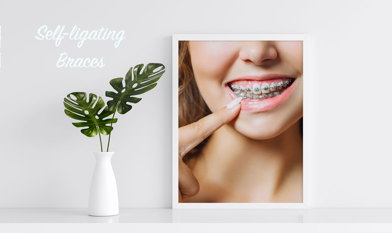 Self ligating braces adults by specialist orthodontist Kensington London